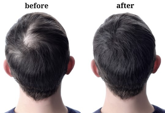 before and after, haircare, hair care, men, hair recovery complex, m-007